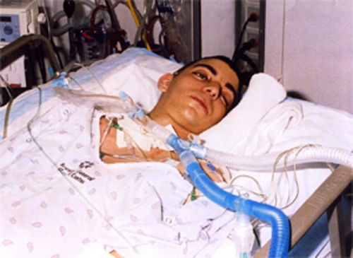 Eric began to open his eyes six months into his coma.