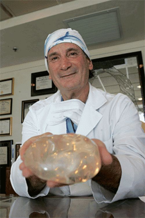 "Ten thousand and counting: Coral Gables doctor Leonard Roudner holds a breast-to-be. Roudner calls breast augmentation ""a very happy surgery"""