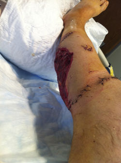 Anthony Segrich's leg after the attack.