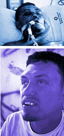 Nica near death after the hit-and-run (top), and with his new face, and a new life