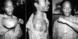 October 2001: Titus Berry's injuries were apparent two  months after his  encounter with cops
